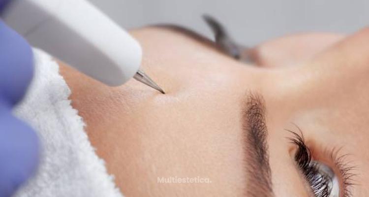 La cuperosis: causas y tratamientos