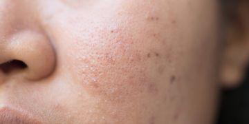 Tratamiento antiacné con fototerapia