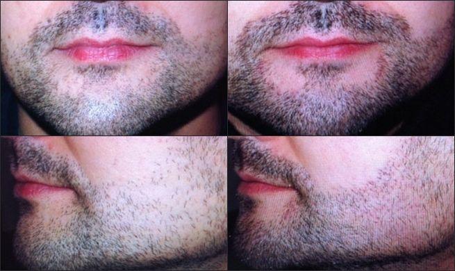implante-de-pelo-para-barba-y-bigote-2.j