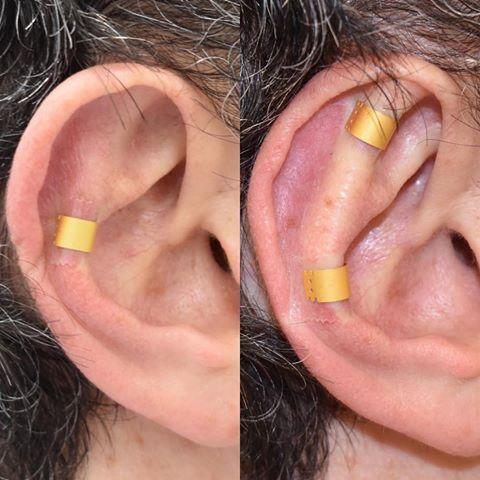 earfold.jpg