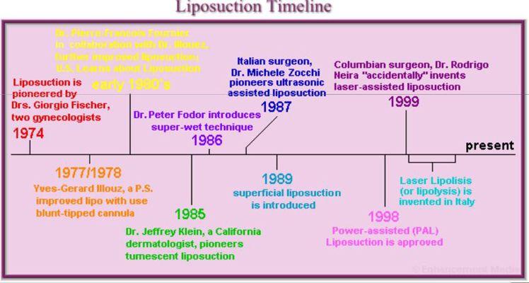 historia-liposuccion.jpg