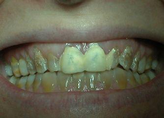 Clínica Murcia Dental, Dr. Jesús Santos Pérez Ortega