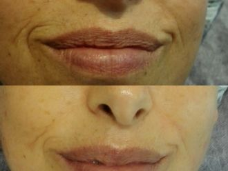Radiofrecuencia facial-663717