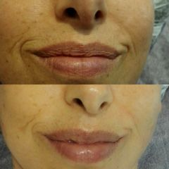 Tratamiento de arrugas labios - Reina Paz Estética Avanzada