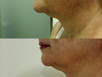 Tratamiento antimanchas-663718