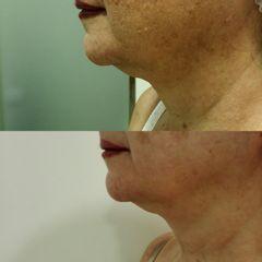 Tratamiento Luminosidad- Hiperpigmentación - Reina Paz Estética Avanzada