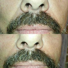 Hyaluron pen, tratamiento naso-geniano - Reina Paz Estética Avanzada