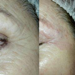 Tratamiento arrugas contorno de ojos - Reina Paz Estética Avanzada