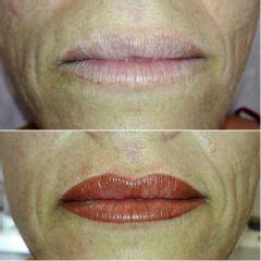 Micropigmentación labios - Reina Paz Estética Avanzada