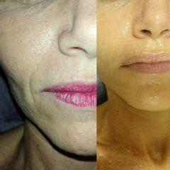 Tratamiento piel grasa - Reina Paz Estética Avanzada