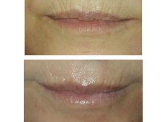 Aumento labios-738880
