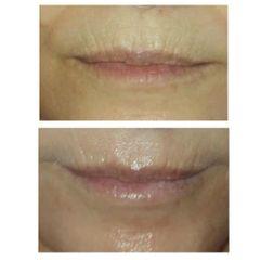 Aumento de labios - Reina Paz Estética Avanzada