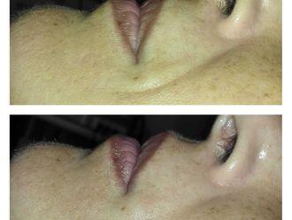 Rejuvenecimiento facial - 799605
