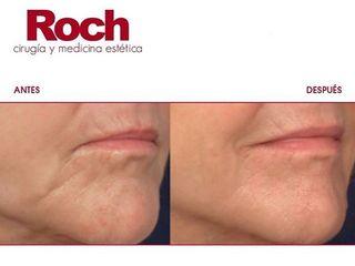 Antes y después Radiofrecuencia facial - Clínica Roch