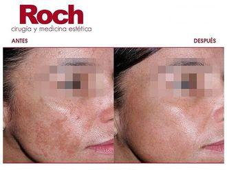Radiofrecuencia facial-702114