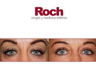 Antes y después Eliminación de ojeras - Clínica Roch