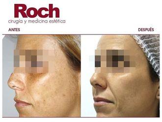 Radiofrecuencia facial-702117