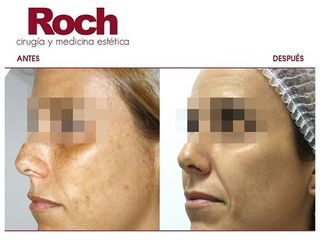Radiofrecuencia facial - Clínica Roch