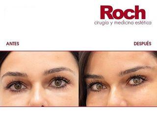 Antes y después Hilos tensores - Clínica Roch