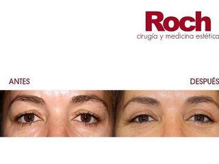 Antes y después Blefaroplastia - Clínica Roch