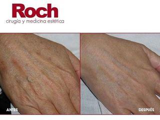Antes y después Peeling - Clínica Roch