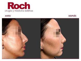 Antes y después Rinoplastia - Clínica Roch