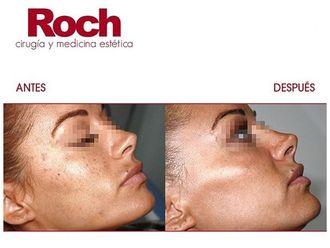 Radiofrecuencia facial-702125