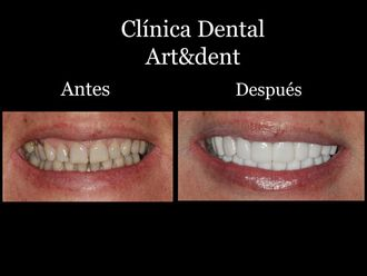 Blanqueamiento dental - 621987