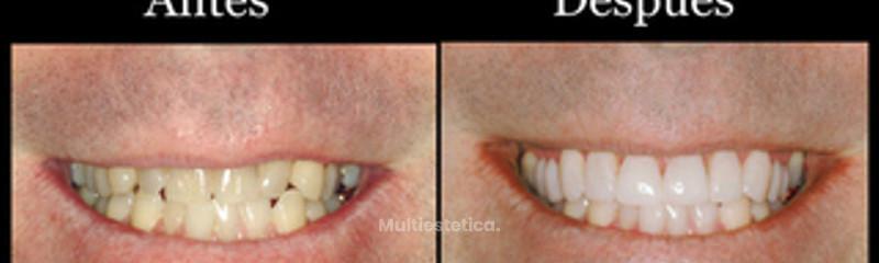 Antes y después dental