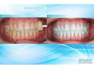 Blanqueamiento dental - 624565