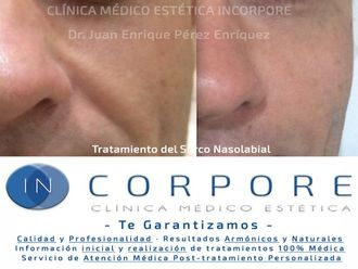 Rellenos faciales-579243