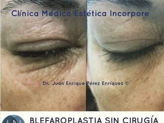 Blefaroplastia sin cirugía-693333