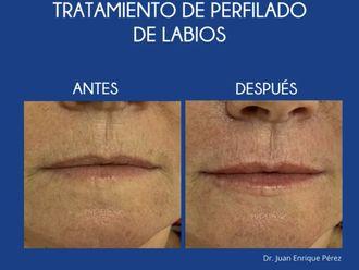 Aumento labios-693374