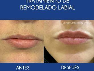 Aumento labios-693376