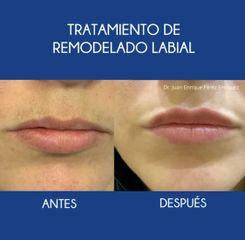 Tratamiento aumento de labios en malaga y fuengirola