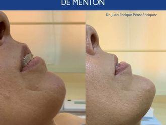 Rellenos faciales-693384