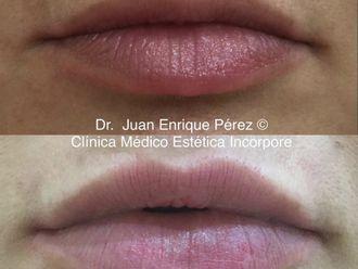 Aumento labios - 693386