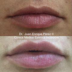 Remodelado labios fuengirola