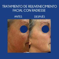Tratamiento flacidez facial radiesse