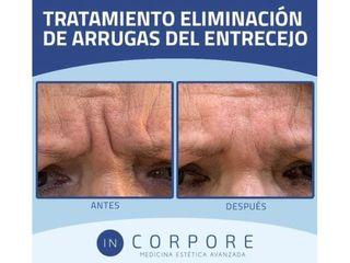 Bótox - Dr. Juan Enrique Pérez Enríquez