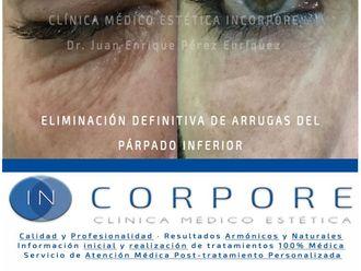 Ácido hialurónico-713830