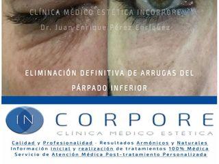 Ácido hialurónico - Dr. Juan Enrique Pérez Enríquez