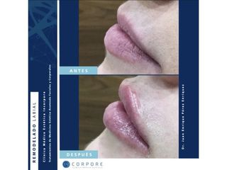 Aumento de labios - Dr. Juan Enrique Pérez Enríquez