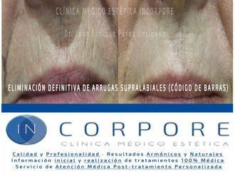 Ácido hialurónico-713833