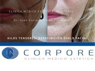 Hilos tensores - Dr. Juan Enrique Pérez Enríquez