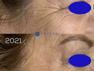 Rejuvenecimiento facial - 794482