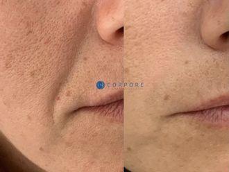 Rejuvenecimiento facial - 794483