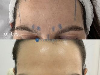 Rellenos faciales - 794544