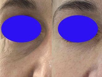 Eliminación arrugas - 794548
