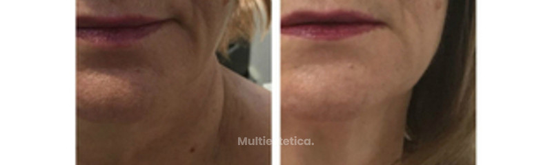 CLINICAS LASER FUSIÓN - MADRID - ALICANTE